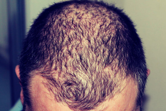Lipogaine Review: Real Results for Men Battling Hair Loss?